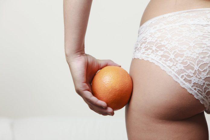 cellulite-rimedi