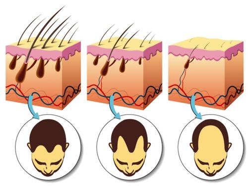 alopecia-rimedi