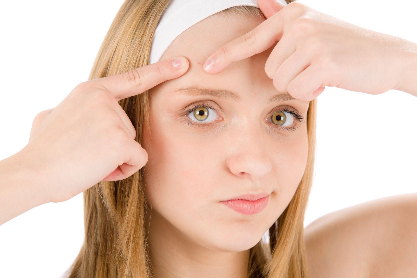 acne-cause