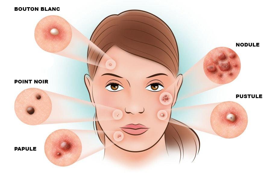 acne-tipi