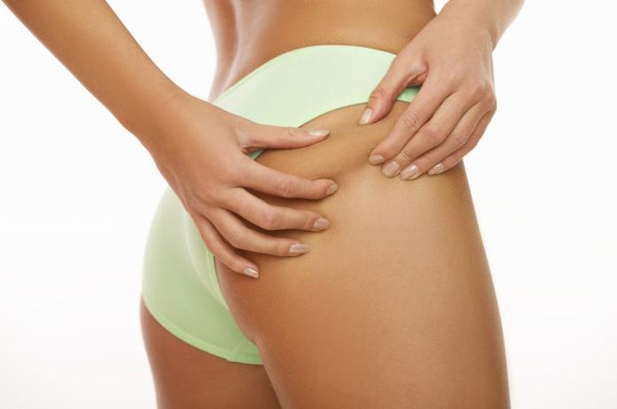 come-prevenire-curare-cellulite