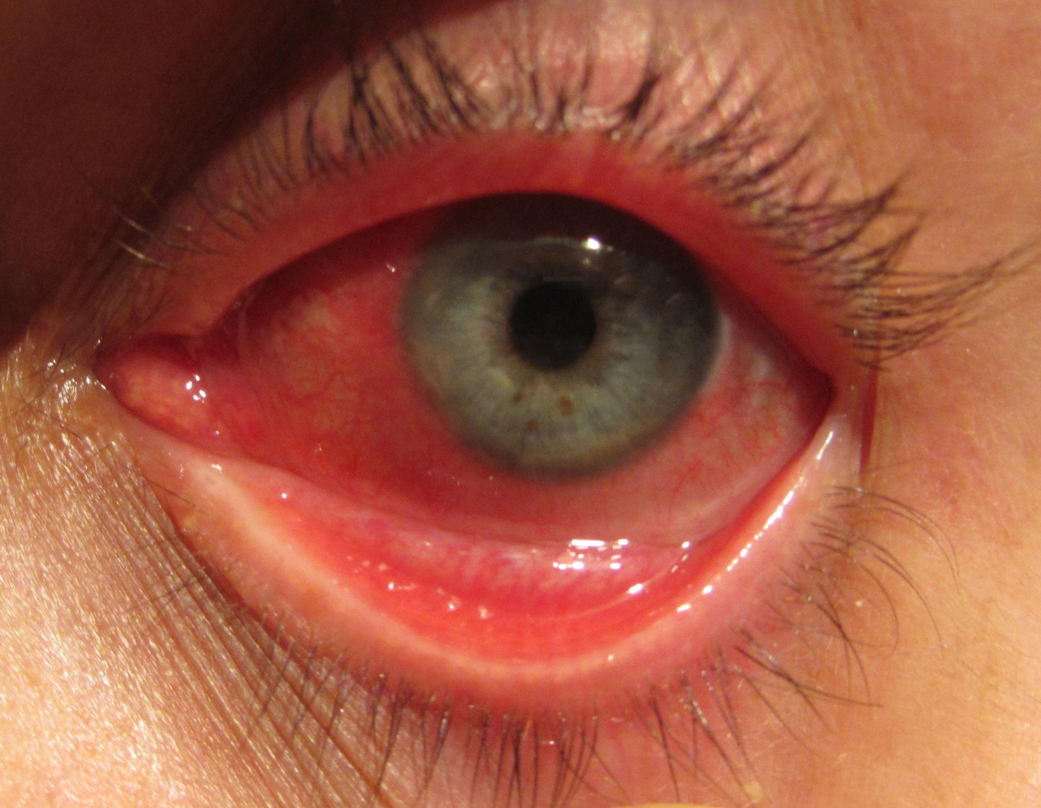 congiuntivite-virale-allergica
