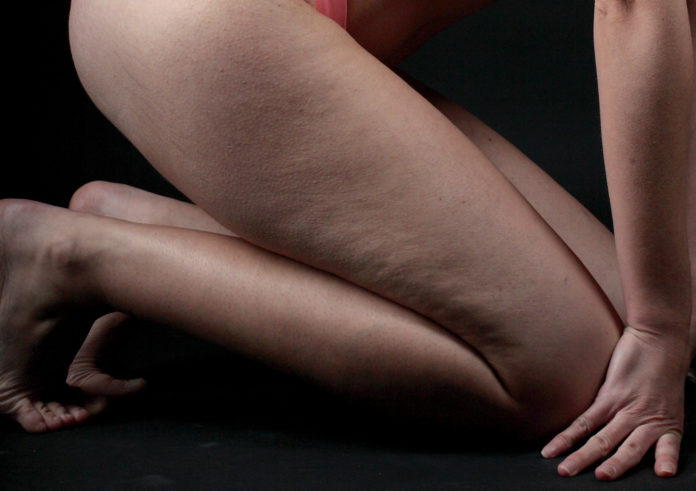 problemi-di-tiroide-e-uso-di-creme-anticellulite