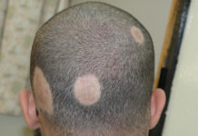 alopecia-areata