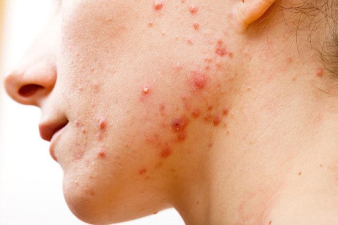 trattamenti-viso-contro-acne