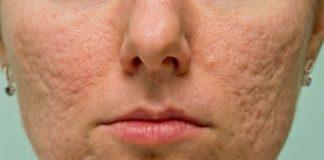 alimentazione-corretta-contro-acne