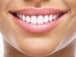 come-sbiancare-i-denti-rimedi-naturali