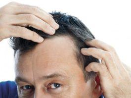 quando-iniziare-cura-caduta-capelli