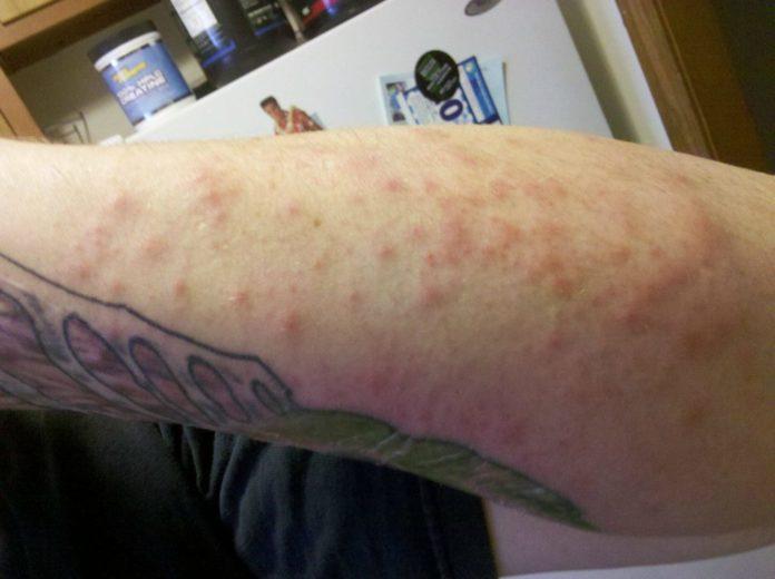 tatuaggio-su-pelle-con-brofoli