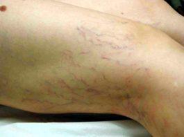 trattamento-anticellulite-capillari-fragili