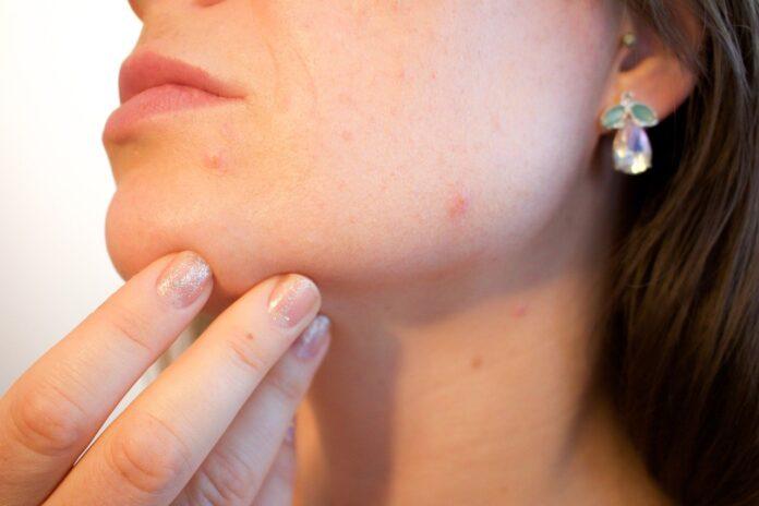 alimentazione-contro-acne