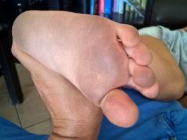 come-pulire-i-piedi-macchiati-dalle-scarpe