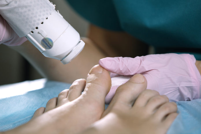 pedicure-onicomicosi