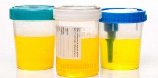 colore-urina