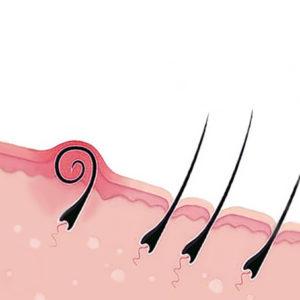 Capelli incarniti dopo lepilazione e come