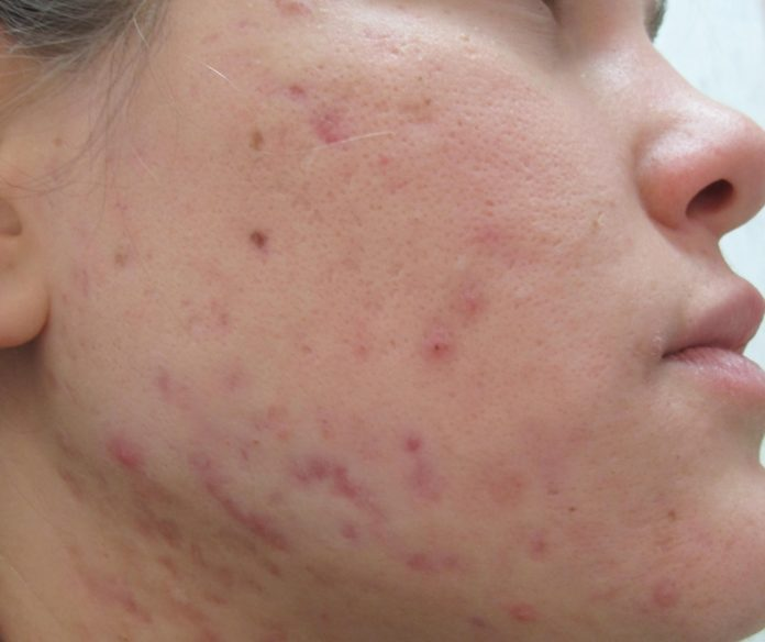 trattamenti-viso-per-segni-acne