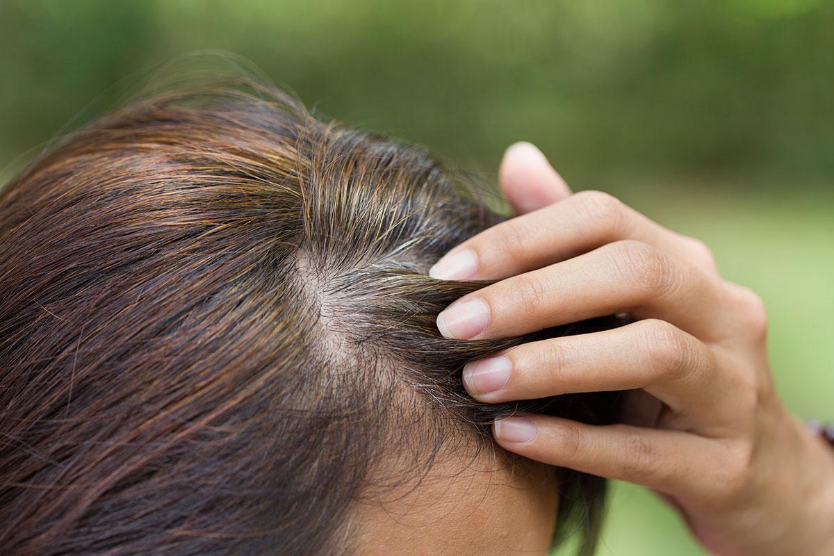 Cura per capelli bianchi  i rimedi naturali - Consiglibenessere.org fdf913fe128c