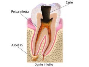 ascesso-dentale-sintomi