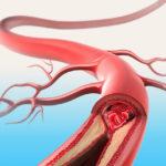 arteriosclerosi