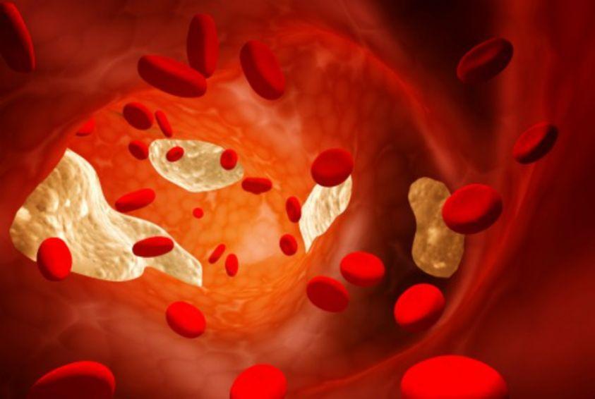 arteriosclerosi-sintomi