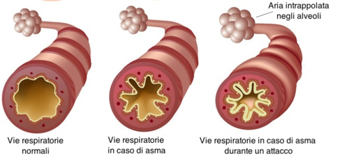 asma-cause