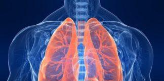 bronchite