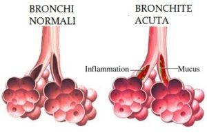 bronchite-acuta