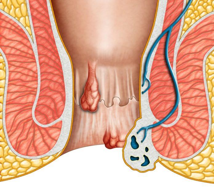 emorroidi-interne-esterne