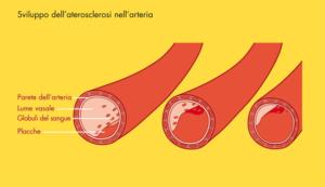 sviluppo-arteriosclerosi