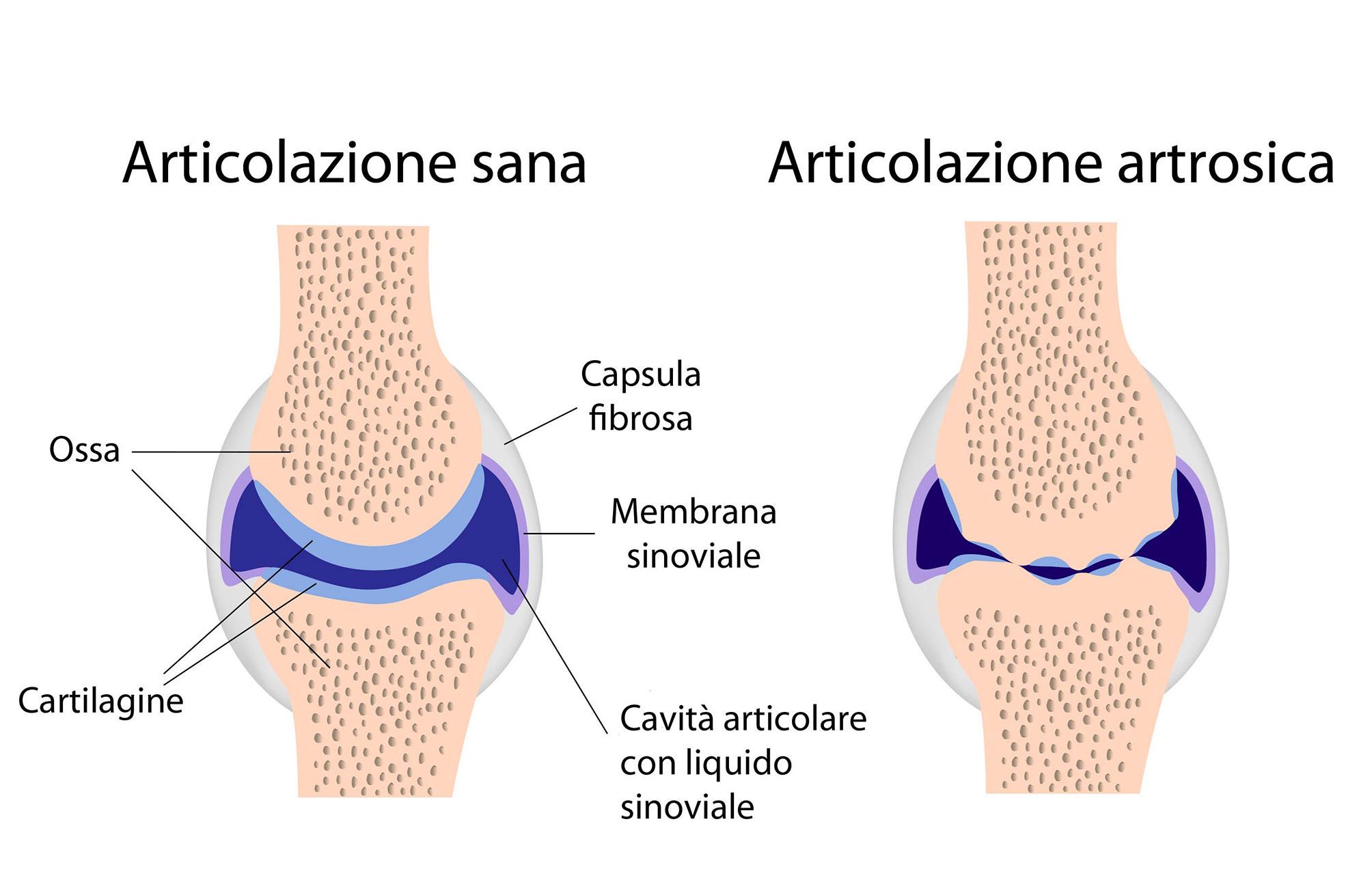 artrite-cosa-e