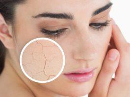 secchezza pelle