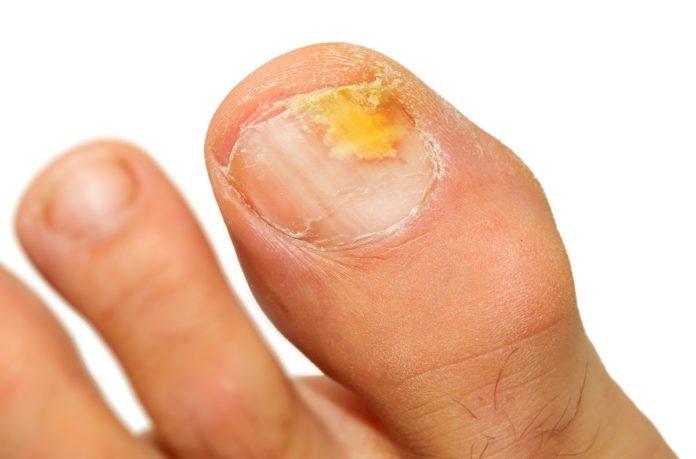 micosi unghie