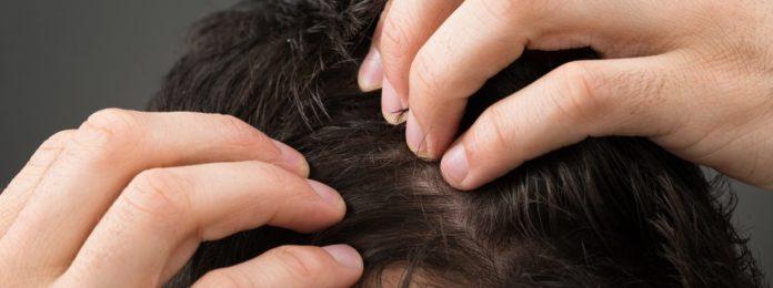 alopecia psicogena