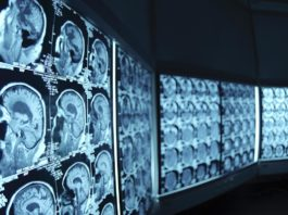 radiologia immagini