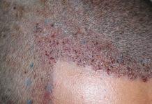 trapianto-di-capelli