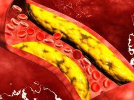 colesterolo alimentazione
