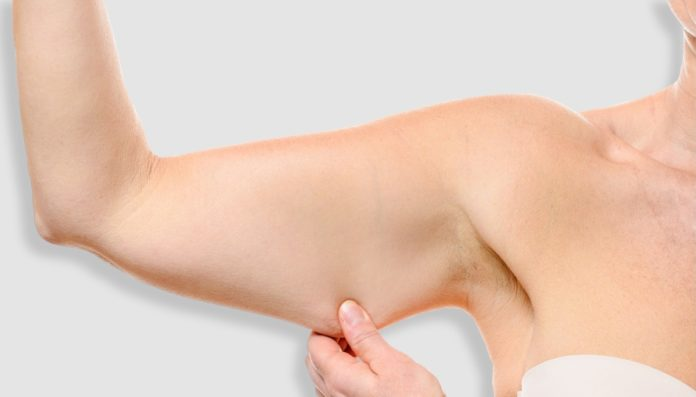braccia a tendina