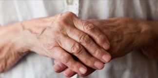 come si cura artrite mani