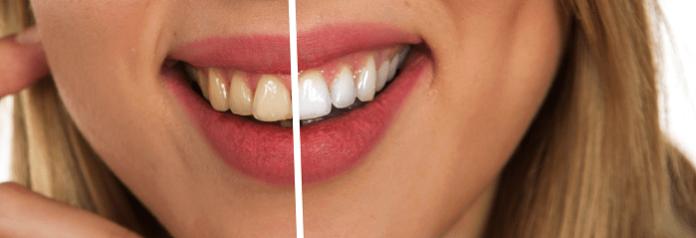 lavare i denti prima o dopo colazione